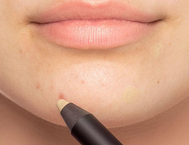 Un correcteur vert est appliqué sur une imperfection du menton.
