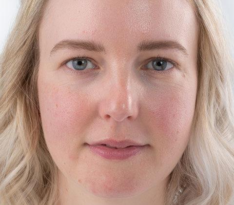 Vorher- und Nachher-Effekt beim Schminktipp Make-up bei Hautproblemen